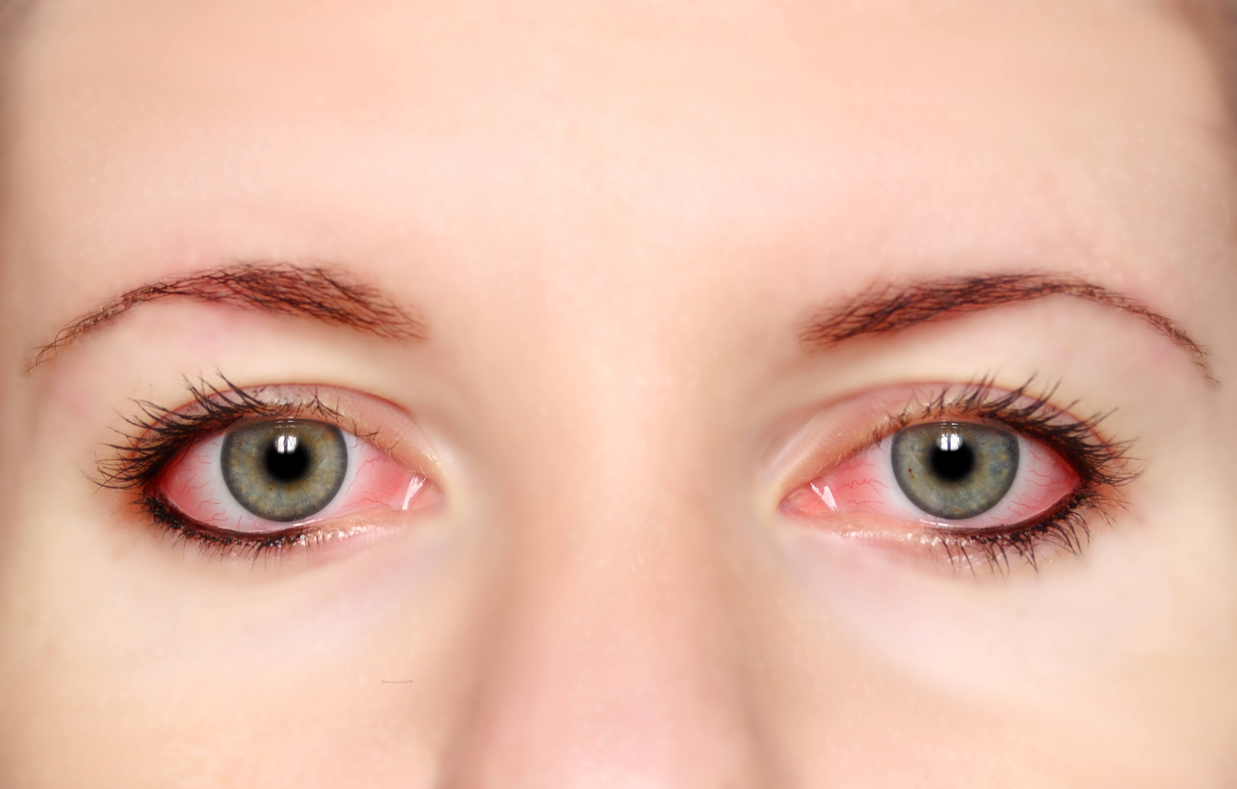 Red watery eyes as a symptom of an eye allergy.