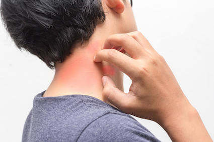 Male adult scratching rash from penicillin allergy or adverse reaction that needs to be tested