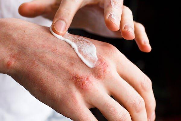 Patient applying cream to eczema rash on hand