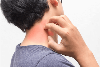 Itchy hives caused by allergic reaction to food