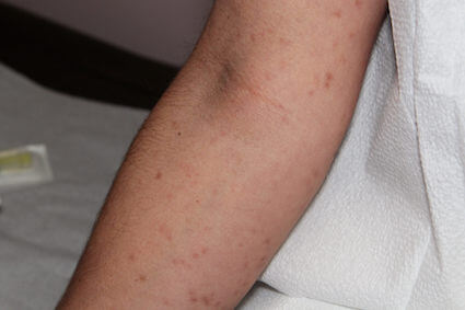 Mast cell disorder spots on the arm of a patient in New Orleans, LA